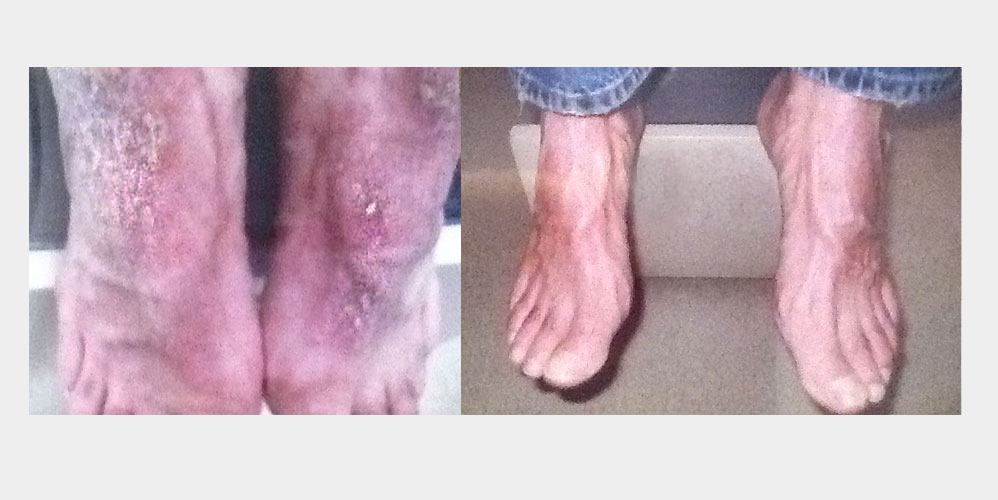 Psoriasis healed with Lisset Serum