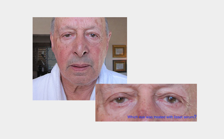 Dr. Reich has applied Lisset Serum to the skin around one eye for over a decade, and the result is clear!
